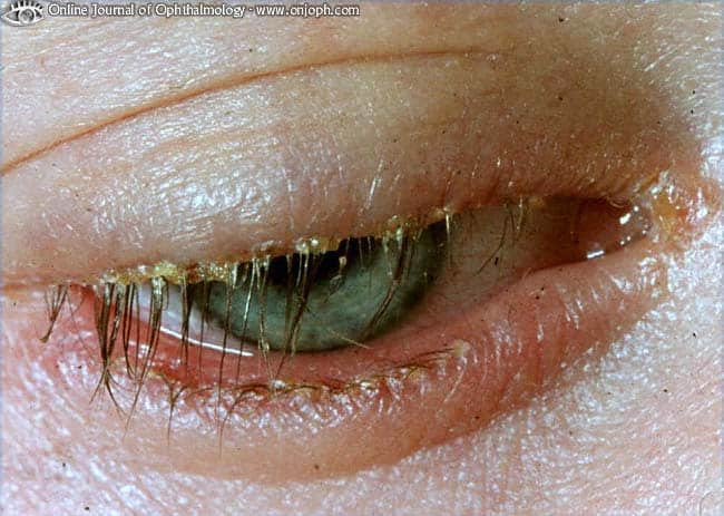 Augenerkrankungen: Chronische Lidrandentzündung (Chronische Blepharitis)