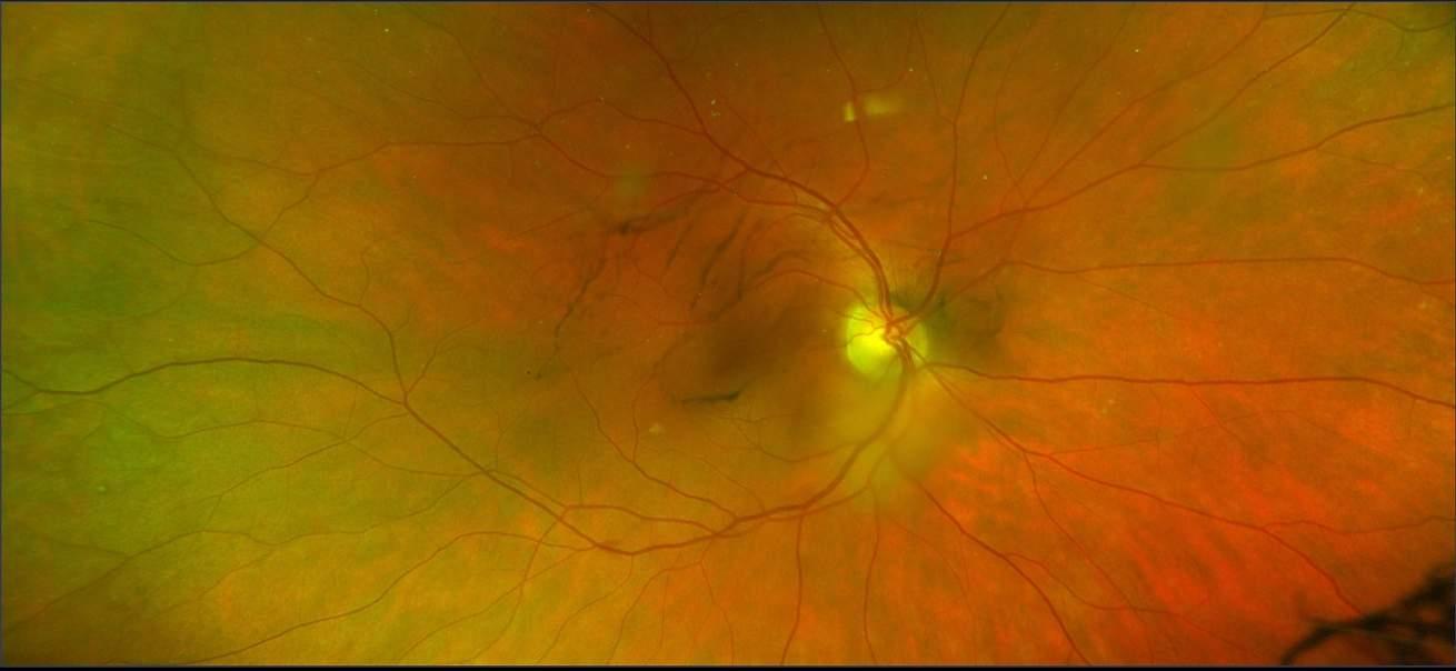 Augenerkrankungen - Glaskörperschlieren / Glaskörpertrübung (Mouches Volantes)