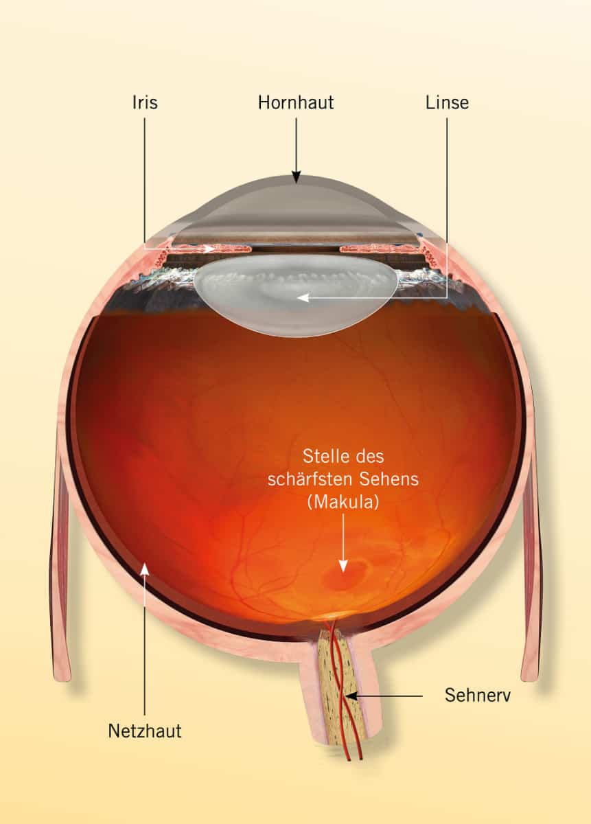 Querschnitt des Auges: Uveitis
