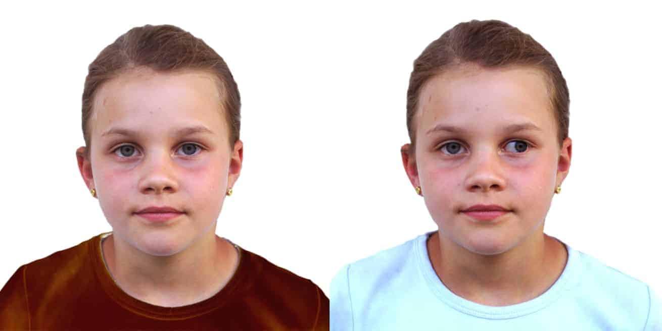 Schielendes Auge - Außenschielen: Schielen (Strabismus) - Sehfehler / Fehlsichtigkeiten