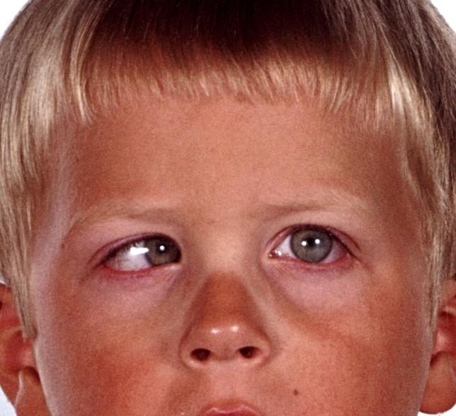 Schielendes Auge - Innenschielen: Schielen (Strabismus) - Sehfehler / Fehlsichtigkeiten
