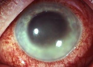 Augenerkrankungen: Typische Uveitis, die mit einer starken Rötung des Auges einhergeht.