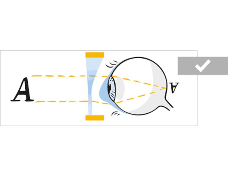 Visualisierung von Behandlungsmöglichkeiten bei Augenerkrankungen