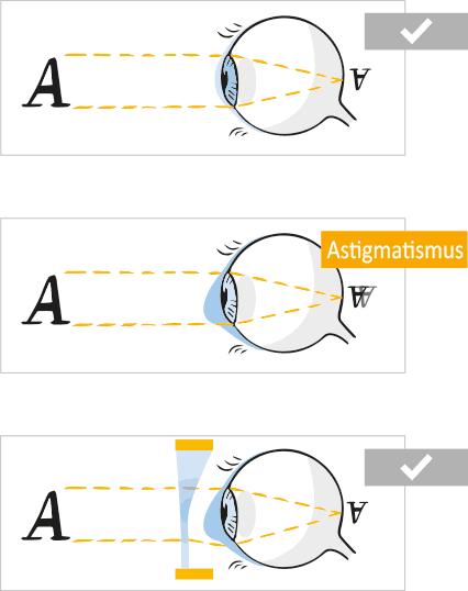 Visualisierung des Sehfehlers bei einer Hornhautverkrümmung (Astigmatismus)