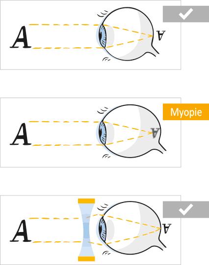 Visualisierung des Sehfehlers beim kurzsichtigen Auge (Kurzsichtigkeit - Myopie)