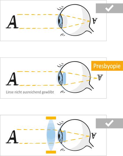Sehfehler / Fehlsichtigkeiten: Altersweitsichtiges Auge: Altersweitsichtigkeit (Presbyopie)