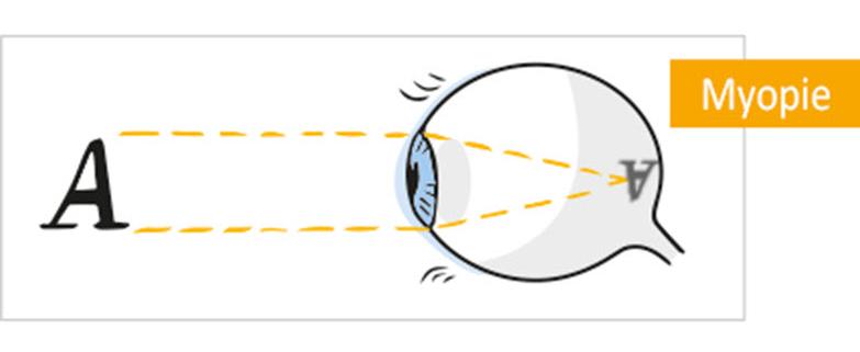 Beugen Sie hoher Kurzsichtigkeit bei Kindern (Myopie) mit Atropin-Tropfen vor. Mehr Infos in Ihrer Augenarztpraxis Ettingen!